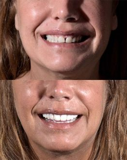 patients with new desing of smile