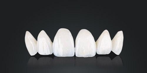 porcelain veneer in smile makeover