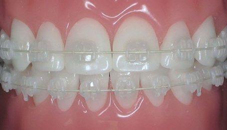 braces ceramic in smile makeover