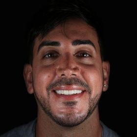 before and after patients with porcelain veneers