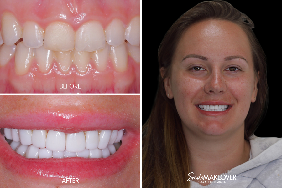 porcelain veneers in playa del carmen