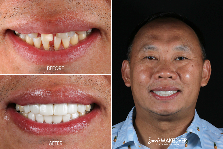 porcelain veneers in mexico playa del carmen