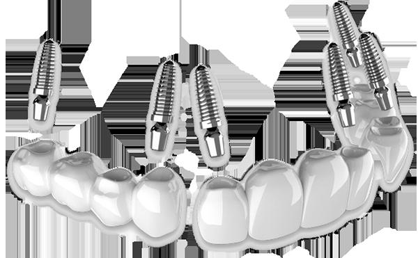 3 on 6 implants mexico