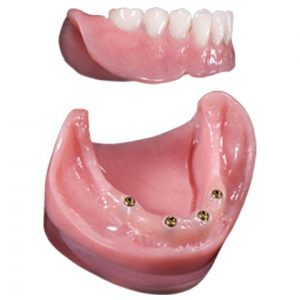locator retained snap on dentures mexico