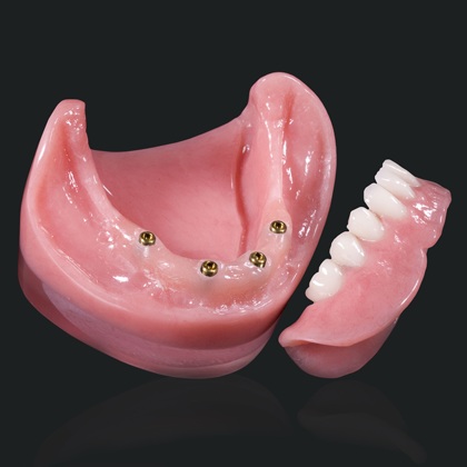 snap on dentures mexico