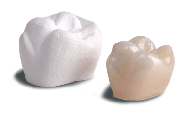 Dental Crown Made in Mexico