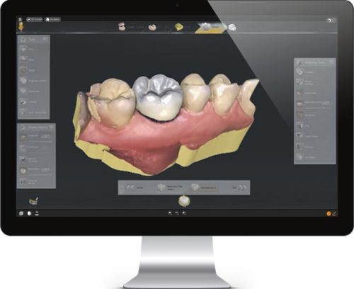 smile desing with dental crowns mexico